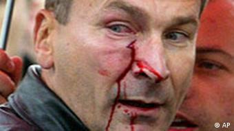 Volker Beck after being attacked by nationalists in Moscow