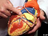 Modelo de corazón: arterias esclerosadas causan infartos.