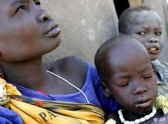 A mother holds her malnourished boy