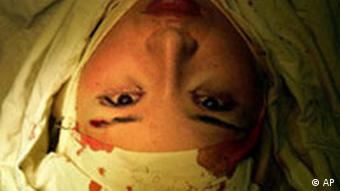 Bildgalerie Schönheitschirurgie in China