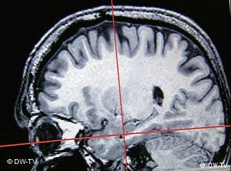 Зазирнути у мозок психопатів можна