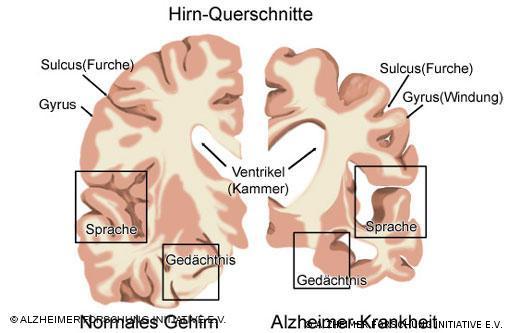 سمت چپ، تصویر مغزی سالم و سمت راست تصویر مغزی مبتلا به بیماری آلزایمر