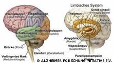 Die linke Abbildung zeigt das seitliche äußere Gehirn mit den wichtigen Hirnlappen (Frontal-, Scheitel-, Schläfen- und Hinterhauptslappen sowie die Hirnstammstruktur (Brücke, verlängertes Mark und Kleinhirn). Bilderbenutzung genehmigt von Frau Dr. Ellen Wiese: COPYRIGHT: ALZHEIMER FORSCHUNG INITIATIVE E.V.