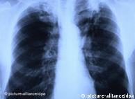 Δεν υπάρχει ακόμη εμβόλιο κατά της φυματίωσης