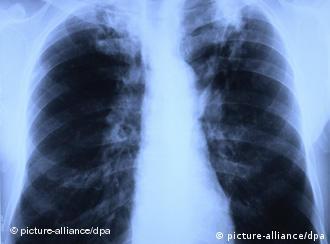 Röntgenbild einer Lunge, die von Tuberkulose befallen ist (Foto: dpa)