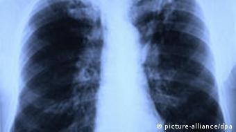 Röntgenbild einer Lunge mit Tuberkulose