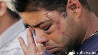 Mügeln nach Massenschlägerei - Verletzte Inder