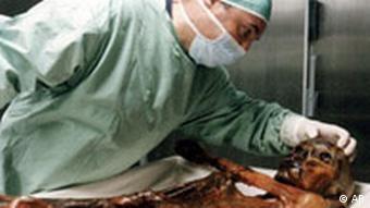 Italien Südtirol Ötzi Todesursache