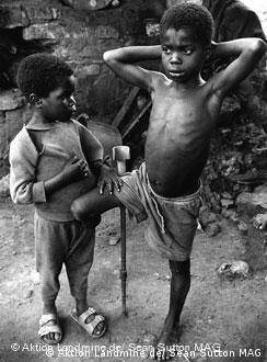 Dos 70 mil mutilados em Angola, 8 mil são crianças.