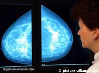 أطباء ينجحون في جعل الخلايا السرطانية تضيء