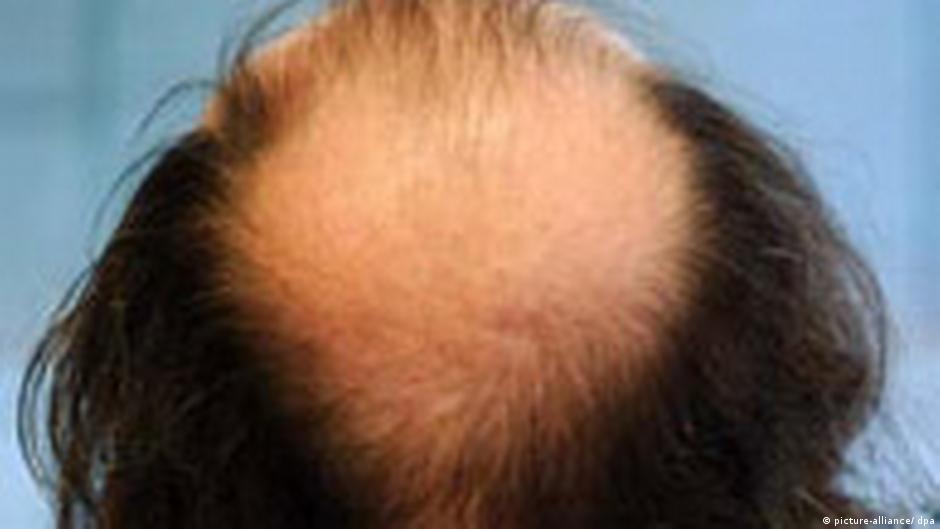اكتشاف الجين المسؤول عن تساقط الشعر علوم وتكنولوجيا آخر الاكتشافات والدراسات من Dw عربية Dw 26 02 2008