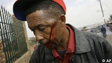 A man bleeds after being wounded by South African police dispersing a crowd in the Reiger Park informal settlement outside Johannesburg, South Africa, Tuesday, May 20, 2008. Clashes pitting the poorest of the poor against one another have focused attention on complaints that South Africa's post-apartheid government has failed to deliver enough jobs, housing and schools to go around.(AP Photo/Jerome Delay)