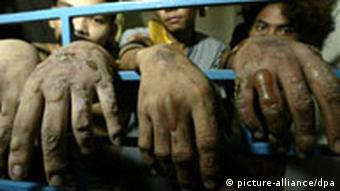Three prisoners in the Philippines show their injured hands