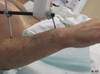 One of Karl Merk's new arms shortly after the operation, photo courtesy of Rechts der Isar Clinic