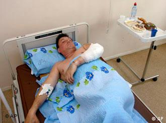 A wounded Russia pilot in the hospital