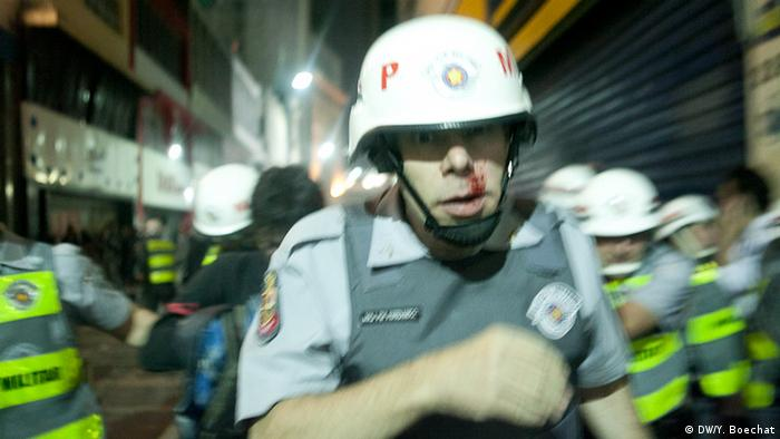 Vítimas da violência Com o aumento da violência nas manifestações públicas, soldados da Polícia Militar também são vítimas de agressão. Manifestantes dispostos à violência partem para o confronto ou jogam garrafas e coquetéis molotov contra as forças de segurança.