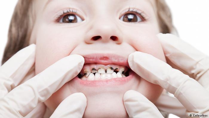 No solo las caries pueden ser un gran problema. También la periodontitis y otras enfermedades amenazan a nuestros dientes y a la salud de todo el organismo.