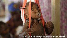 A malnourished child is weighed on a scale at a Doctors Without Borders clinic in Nigeria