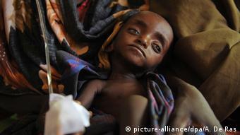 Un niño en África debilitado por la desnutrición.