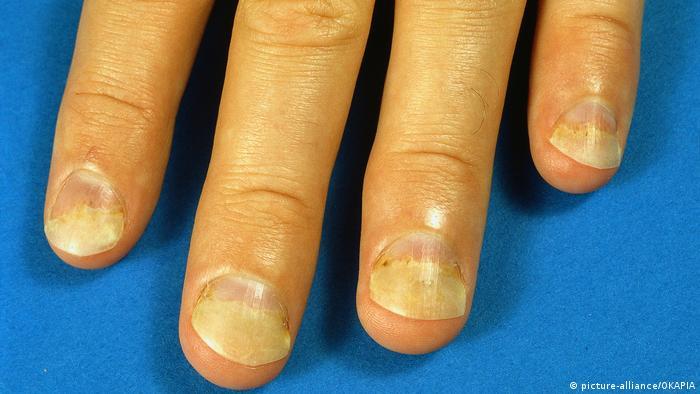 Fingernägel sich abhebende Fingernägel Onycholysis (picture-alliance/OKAPIA)