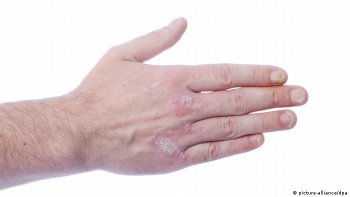 Psoriasis an der Hand und an den Fingernägeln nahaufnahme mit weißem Hintergrund (picture-alliance/dpa)