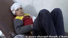 This frame grab from video provided by Muaz al-Shami, Syrian Revolution Network, an opposition activist media organization, that is consistent with independent AP reporting, shows a child on a hospital bed, with a bandage around his head after airstrikes killed over 20 people, in the northern rebel-held village of Hass, Syria, Wednesday, Oct 26, 2016. A team of first responders, the Syrian Civil Defense in Idlib, said at least 50 were wounded in the raids that used parachute mines, targeting the residential area and schools in the village of Hass. Most of those killed were children, the group said on its Facebook page. (Muaz al-Shami, Syrian Revolution Network, via AP) |