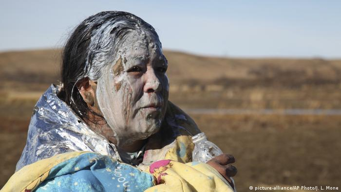 Woman with face covered in white stands at the site of the Dakota Access Pipeline after being pepper-sprayed
