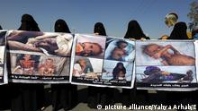 dpatopbilder epa05618880 Yemeni women hold banners depicting people suffering from malnutrition during a rally protesting a UN roadmap for Yemen conflict, outside a hotel where UN special envoy for Yemen Ismail Ould Cheikh Ahmed is staying, in Sana'a, Yemen, 05 November 2016. According to reports, the UN special envoy for Yemen presented a new roadmap calling for naming a new vice president after the withdrawal of the Houthi rebels from the capital Sana_a and other northern provinces and handing over all heavy weapons, in a fresh attempt to end the 19-month conflict in the troubled Arab country. EPA/YAHYA ARHAB Foto: Yahya Arhab/EPA/dpa |