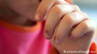 Kind mit Hand vor dem Gesicht (Foto: dpa)