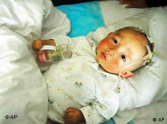 Hundreds of Chinese babies are suffering from kidney stones after drinking contaminated milk