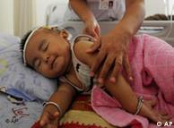 چھوٹے بچوں میں یہ بیماری  دل کے بڑھ جانے اور دیگر عارضہ ہائے قلب کی صورت میں ظاہر ہوتی ہے