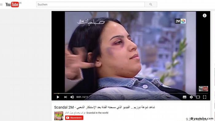 Moroccan TV 'sorry' for makeup tips to hide domestic violence
