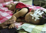 A child suffering from problems related to consuming tainted milk formula rest at a hospital in Shijiazhuang, northern China's Hebei province, Thursday, Sept. 18, 2008. .