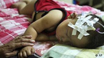 Kleines Kind mit einer Sonde am Kopf (Foto: AP)