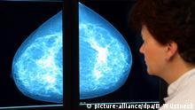 ARCHIVBILD *** In der Radiologie der Universitätsklinik Greifswald untersucht die Oberärztin Christiane Weigel eine Mammographie (Foto vom 21.03.2004). Die Radiologie ist eines von vier Zentren in Mecklenburg-Vorpommern für das Brustkrebs-Screening-Programm. Rund 9.400 Frauen in Mecklenburg-Vorpommerrn folgten seit Einführung des Brustkrebs-Screenings vor zehn Monaten der Einladung zu einer Mammographie. Mehr als 70 von ihnen erhielten nach Angaben des Sozialministeriums die Diagnose Brustkrebs. In den meisten Fällen sei ein Tumor in einem sehr frühen Stadium erkannt worden. Brustkrebs ist bei Frauen das häufigste Tumorleiden. Jedes Jahr erkranken 48.000 Frauen, rund 18.000 sterben pro Jahr in Deutschland an dem Krebs. Foto: Bernd Wüstneck dpa/lmv (zu Korr.-Bericht Brustkrebs-Screening hat sich bewährt - 9.400 Frauen bisher untersucht vom 13.04.2007) +++(c) dpa - Report+++ | Verwendung weltweit