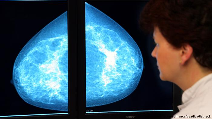 A medical doctor looks at the X-ray of a breast