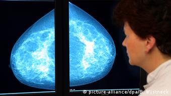 Рентгеновский снимок груди во время маммографии