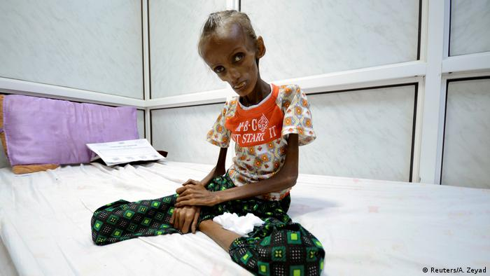 Jemen Unterernährung Saida Ahmad Baghili