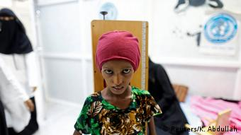Jemen Unterernährung Saida Ahmad Baghili (Reuters/K. Abdullah)
