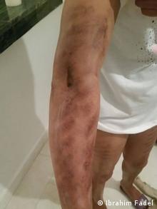 آثار عملية فاشلة لشفط دهون من ذراع فتاة