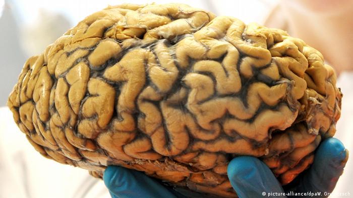 Menschliiches Gehirn (picture-alliance/dpaW. Grubitzsch)