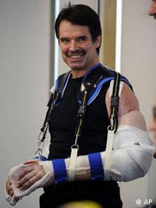 Karl Merk wioth bandaged arms in October 2008