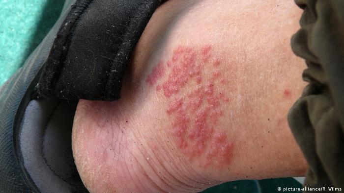 Verletzung durch Kontakt mit einer Feuerqualle (picture-alliance/R. Wilms)