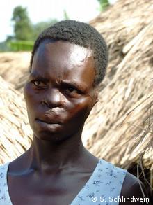 Uganda Margaret Aciro Opfer der LRA