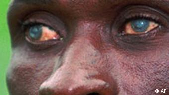 A close up photo of the red eyes of a man infected by river blindness (Photo: Jean-Marc Bouju)