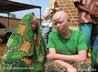 Albino-Frauen in Burundi (Quelle: AP)