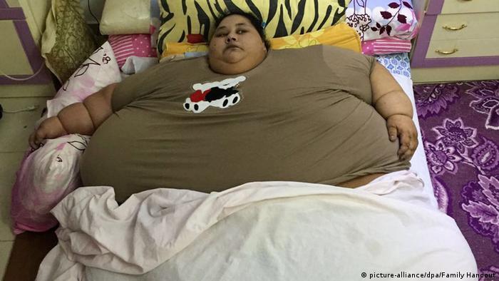 Ägypten Eman Ahmed, die schwerste Frau der Welt (picture-alliance/dpa/Family Handout)