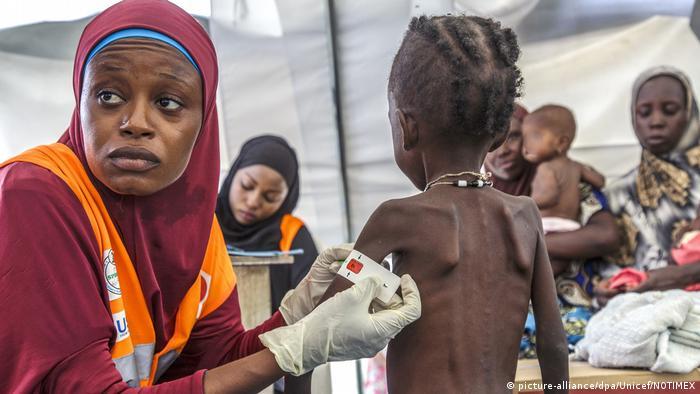 Pothranjeno dijete medicinskom kampu u Nigeriji