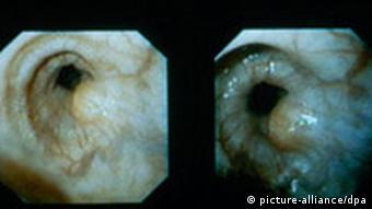 Aufnahmen eines unter der Schleimhaut gelegenen Tumors am Speiseröhren-Magen-Übergang (Kardia) (Foto: dpa)