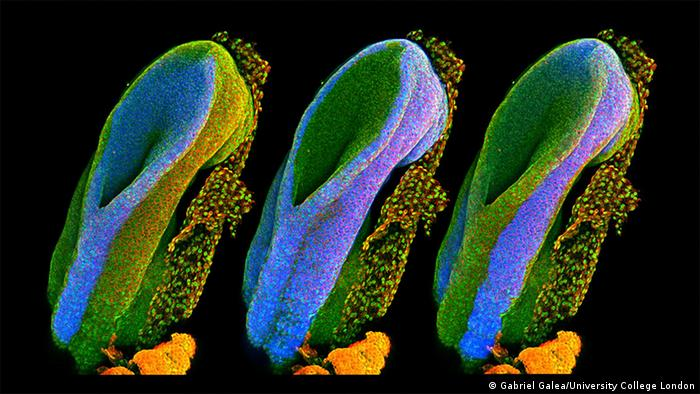 Wellcome Image Awards Developing spinal cord